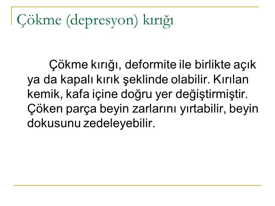 Çökme (depresyon) kırığı