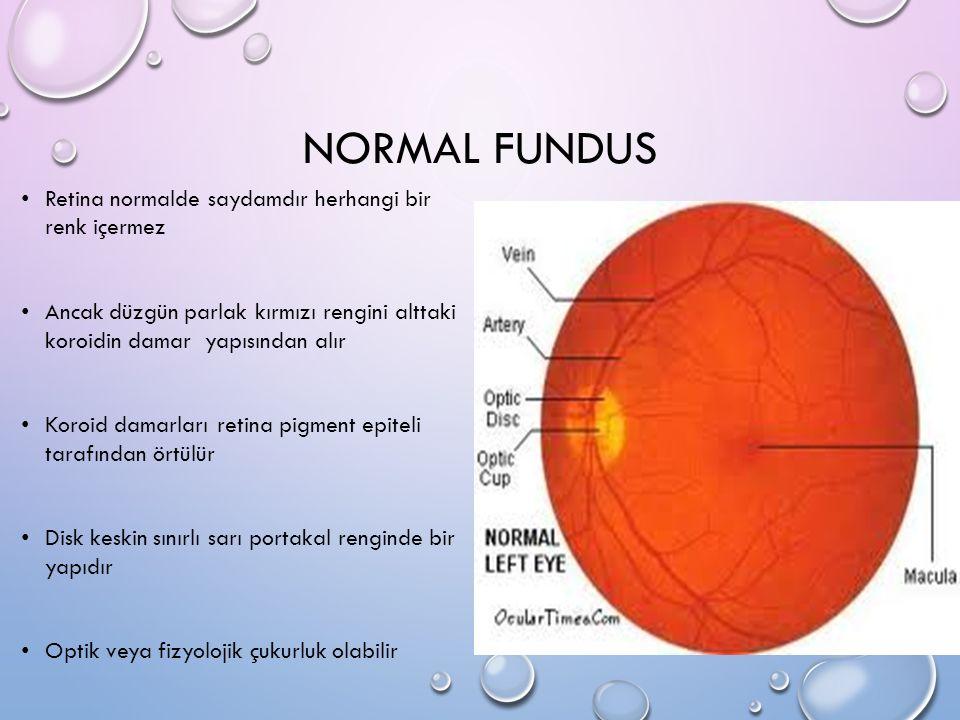 NORMAL FUNDUS Retina normalde saydamdır herhangi bir renk içermez