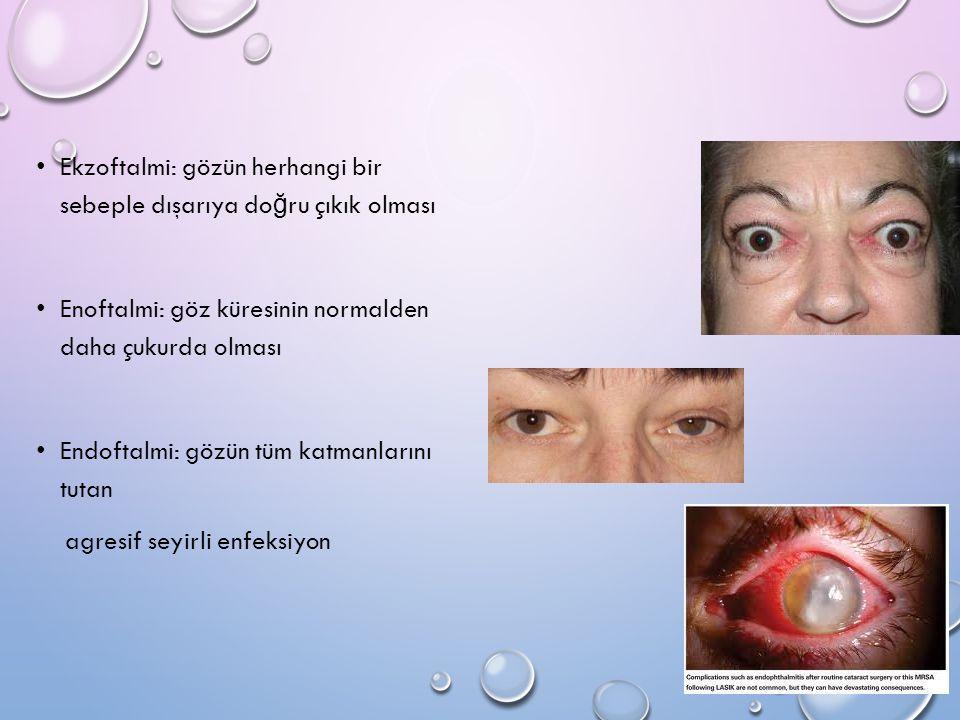 Ekzoftalmi: gözün herhangi bir sebeple dışarıya doğru çıkık olması