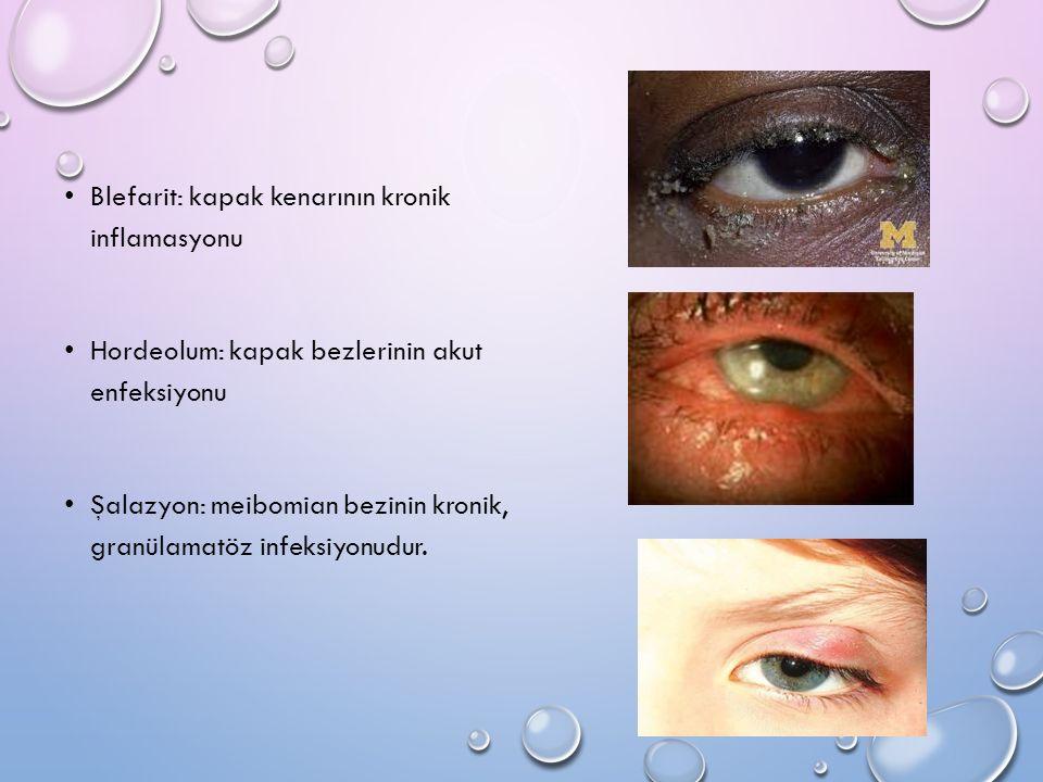 Blefarit: kapak kenarının kronik inflamasyonu