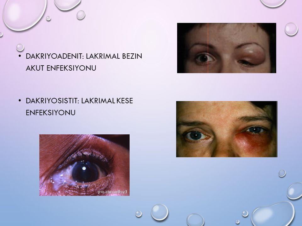 Dakriyoadenit: Lakrimal bezin akut enfeksiyonu