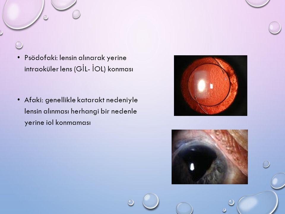 Psödofaki: lensin alınarak yerine intraoküler lens (GİL- İOL) konması