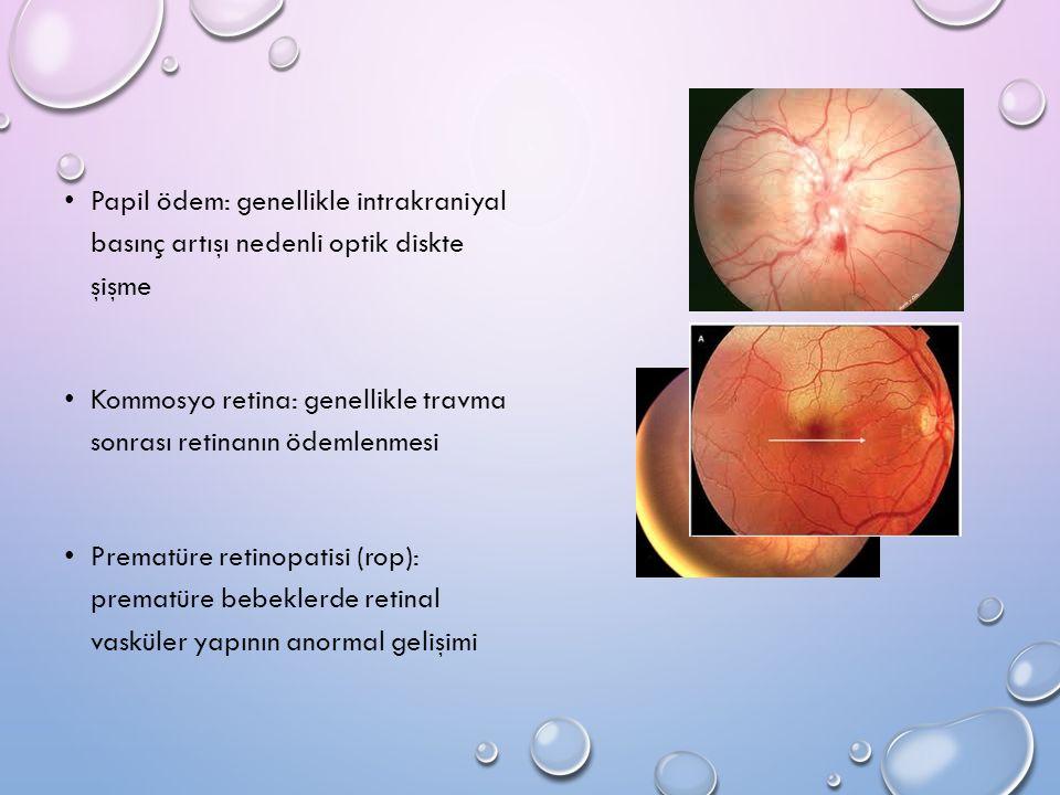 Papil ödem: genellikle intrakraniyal basınç artışı nedenli optik diskte şişme