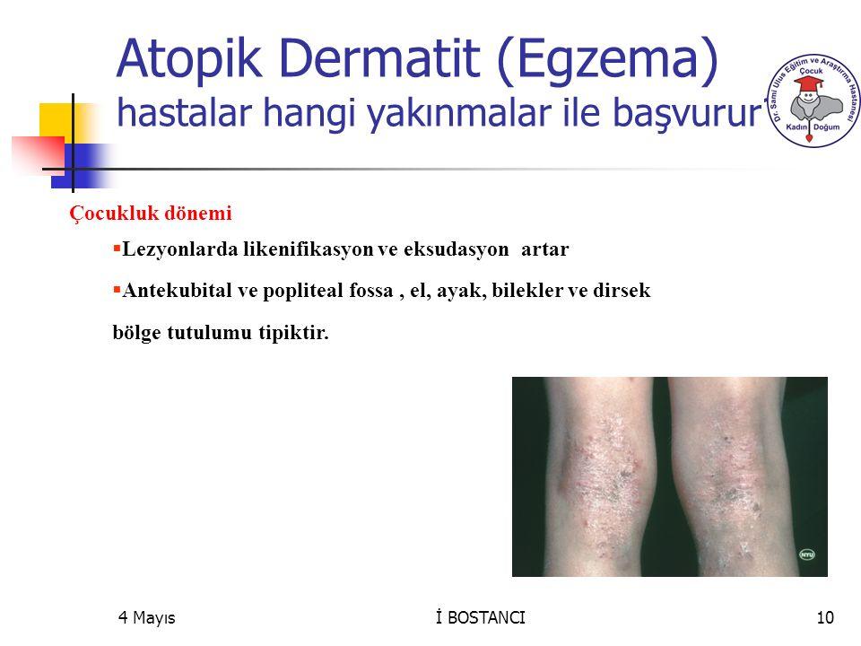 Atopik Dermatit (Egzema) hastalar hangi yakınmalar ile başvurur