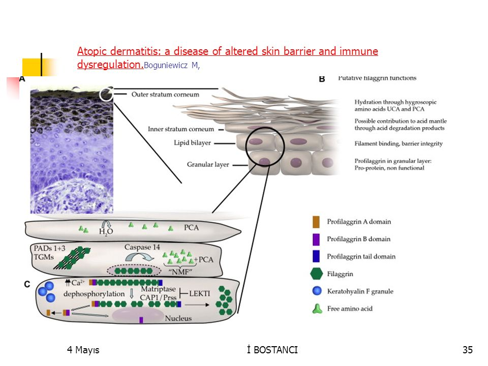 Atopic dermatitis: a disease of altered skin barrier and immune dysregulation.Boguniewicz M,