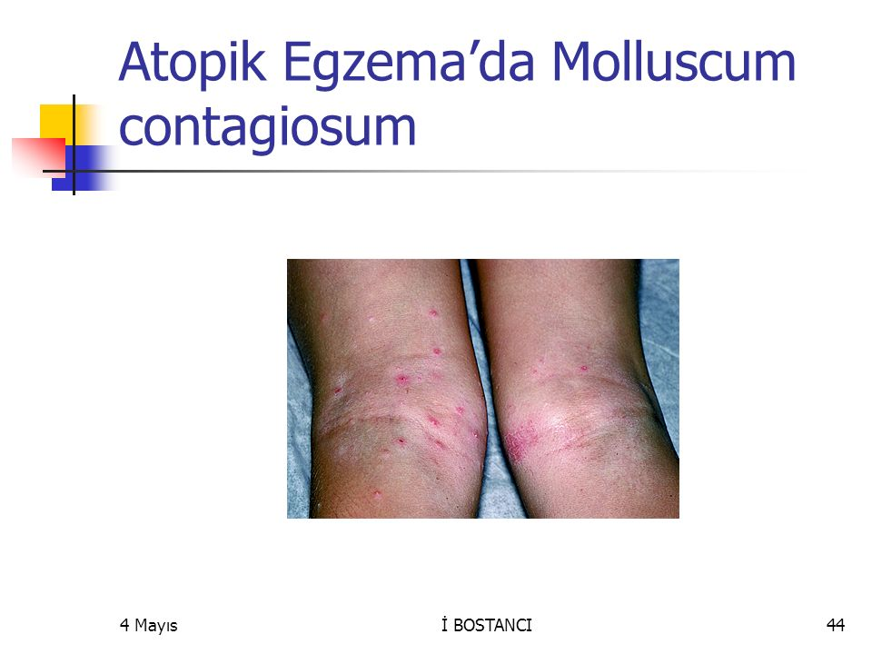 Atopik Egzema'da Molluscum contagiosum