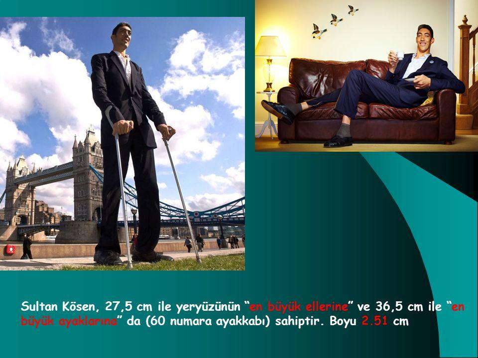 Sultan Kösen, 27,5 cm ile yeryüzünün en büyük ellerine ve 36,5 cm ile en büyük ayaklarına da (60 numara ayakkabı) sahiptir.