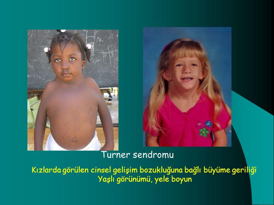 Turner sendromu Kızlarda görülen cinsel gelişim bozukluğuna bağlı büyüme geriliği.