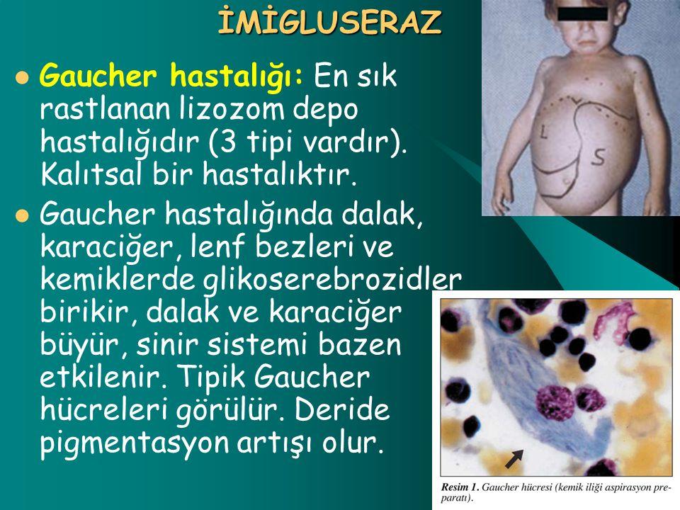 İMİGLUSERAZ Gaucher hastalığı: En sık rastlanan lizozom depo hastalığıdır (3 tipi vardır). Kalıtsal bir hastalıktır.