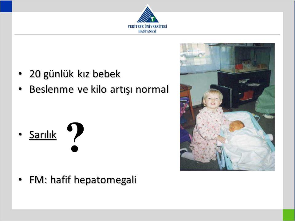 20 günlük kız bebek Beslenme ve kilo artışı normal Sarılık