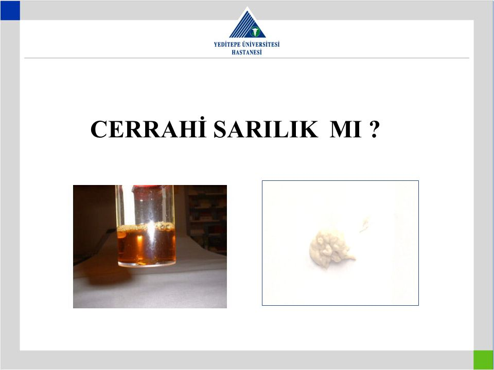 CERRAHİ SARILIK MI