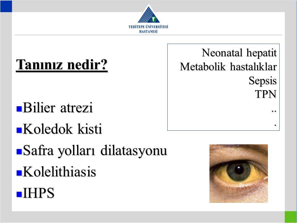 Safra yolları dilatasyonu Kolelithiasis IHPS