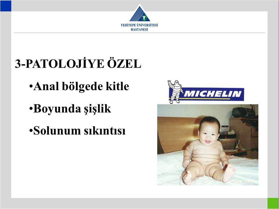 3-PATOLOJİYE ÖZEL Anal bölgede kitle Boyunda şişlik Solunum sıkıntısı