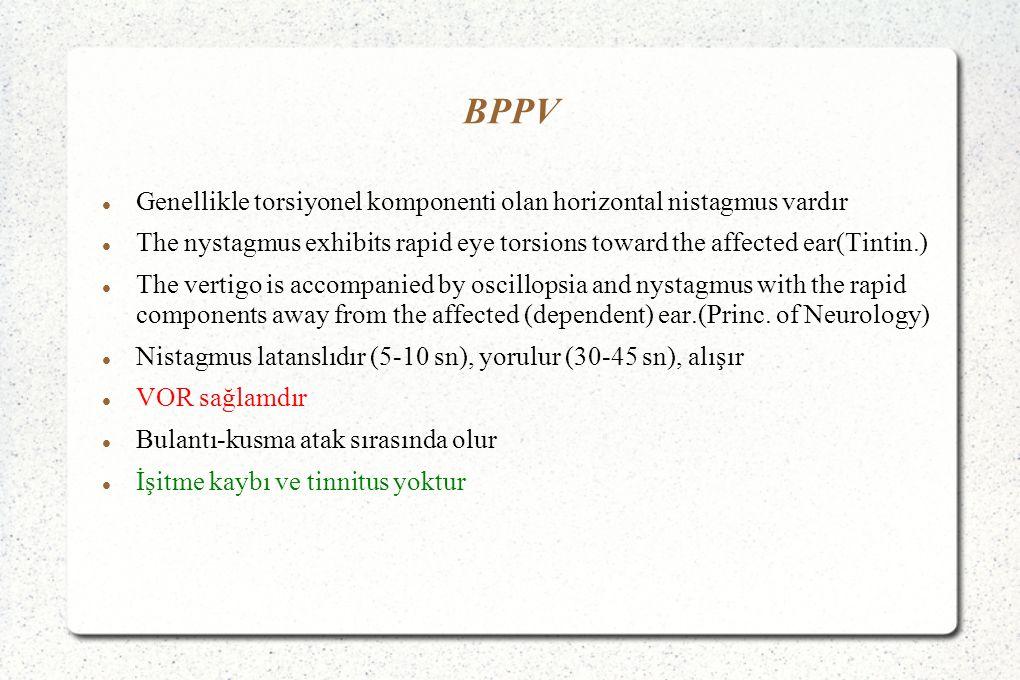 BPPV Genellikle torsiyonel komponenti olan horizontal nistagmus vardır