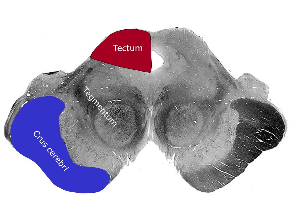 Tectum Crus cerebri Tegmentum