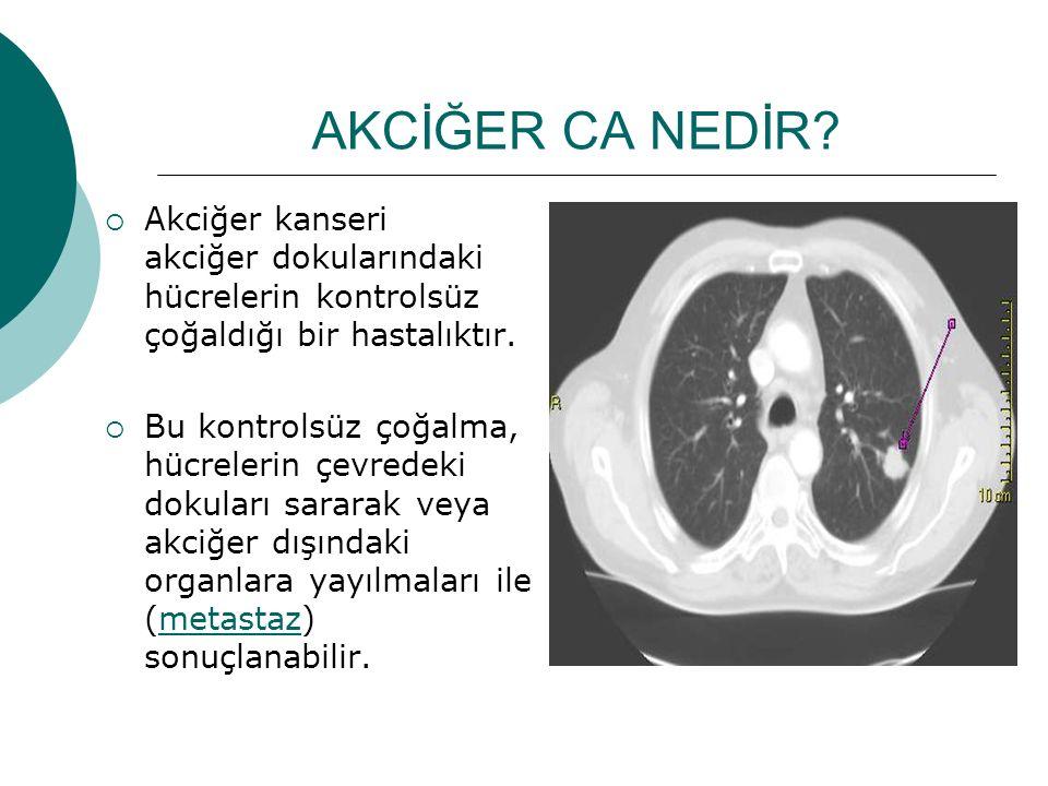 AKCİĞER CA NEDİR Akciğer kanseri akciğer dokularındaki hücrelerin kontrolsüz çoğaldığı bir hastalıktır.