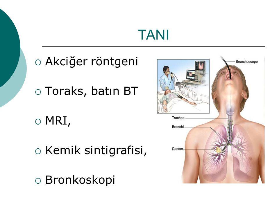 TANI Akciğer röntgeni Toraks, batın BT MRI, Kemik sintigrafisi,