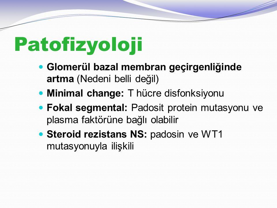 Patofizyoloji Glomerül bazal membran geçirgenliğinde artma (Nedeni belli değil) Minimal change: T hücre disfonksiyonu.