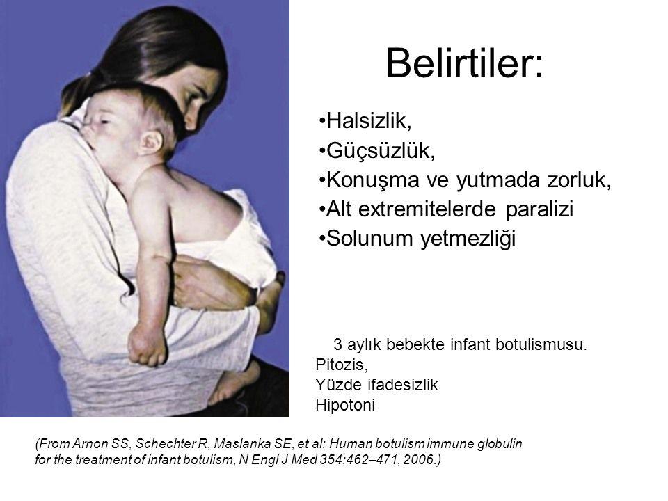 3 aylık bebekte infant botulismusu.
