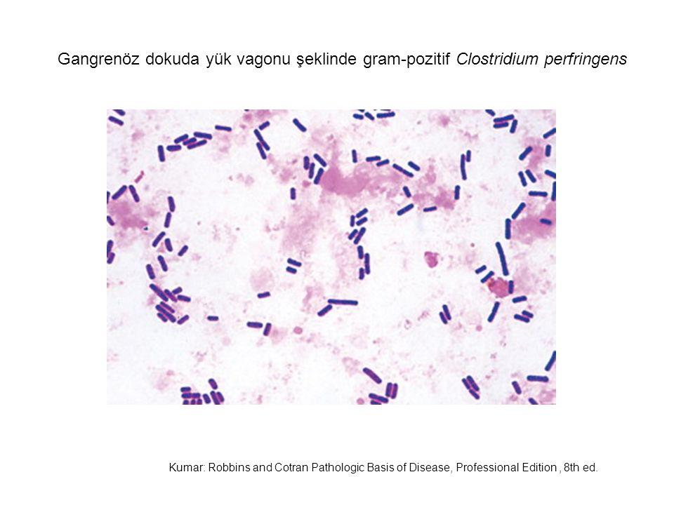 Gangrenöz dokuda yük vagonu şeklinde gram-pozitif Clostridium perfringens