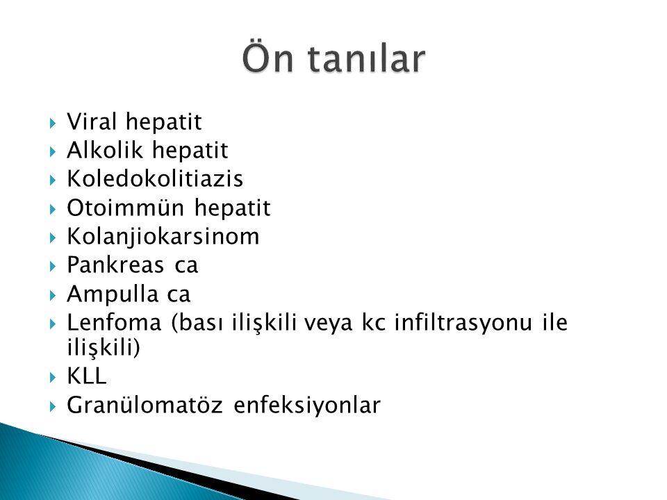 Ön tanılar Viral hepatit Alkolik hepatit Koledokolitiazis