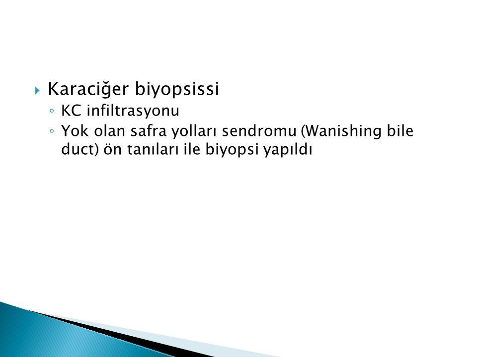 Karaciğer biyopsissi KC infiltrasyonu