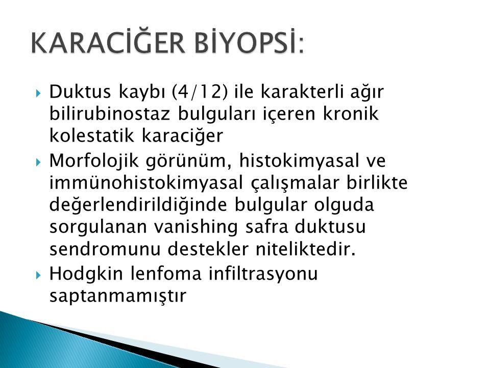 KARACİĞER BİYOPSİ: Duktus kaybı (4/12) ile karakterli ağır bilirubinostaz bulguları içeren kronik kolestatik karaciğer.