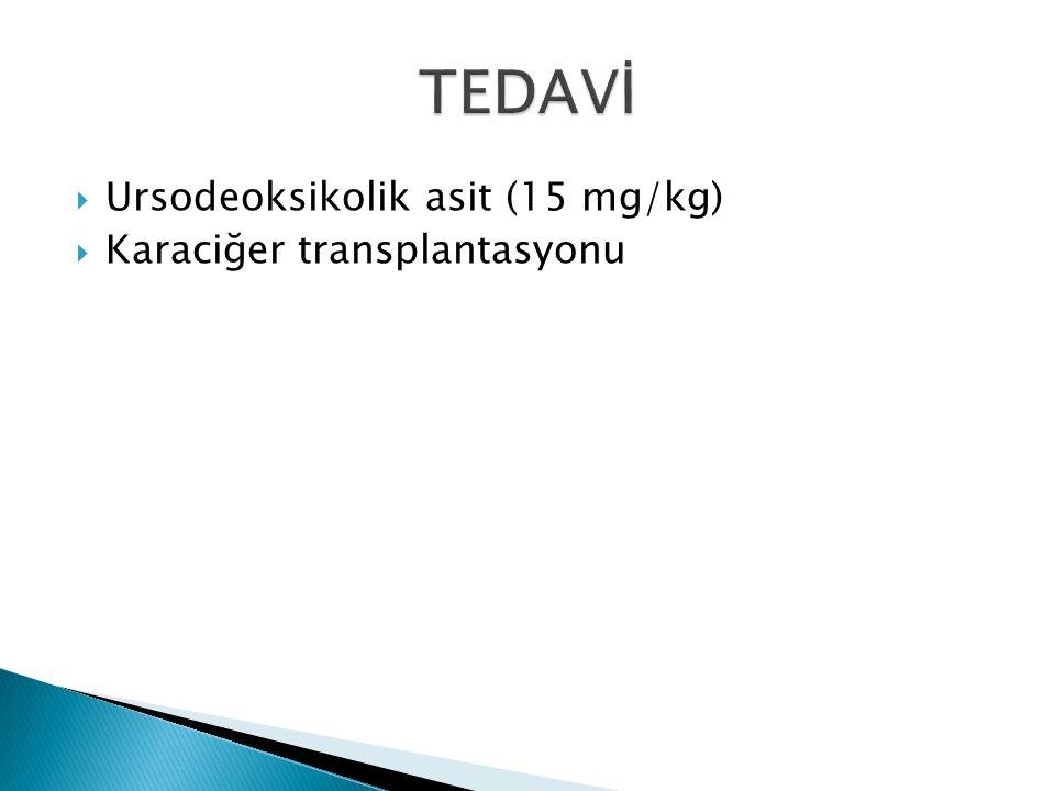 TEDAVİ Ursodeoksikolik asit (15 mg/kg) Karaciğer transplantasyonu