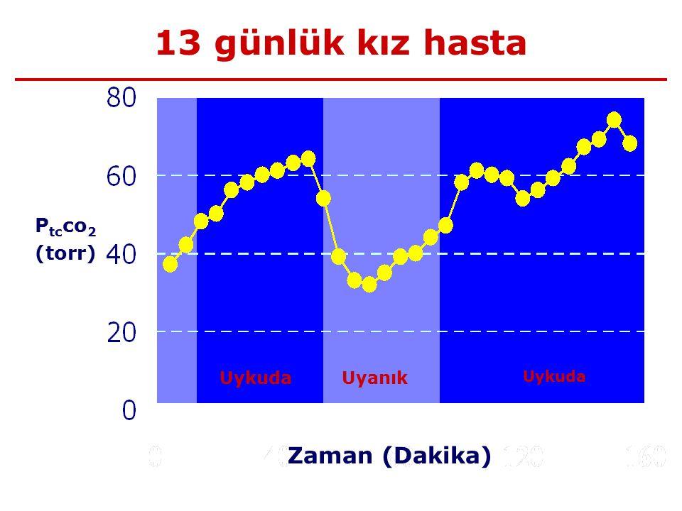 13 günlük kız hasta Ptcco2 (torr) Uykuda Uyanık Uykuda Zaman (Dakika)