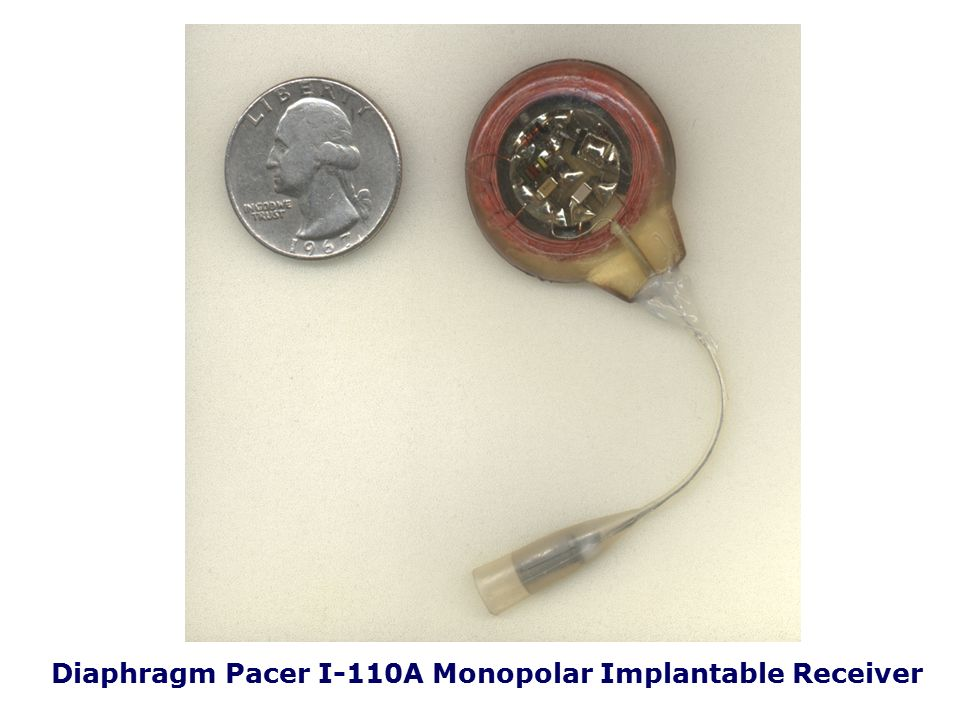 Diaphragm Pacer I-110A Monopolar Implantable Receiver