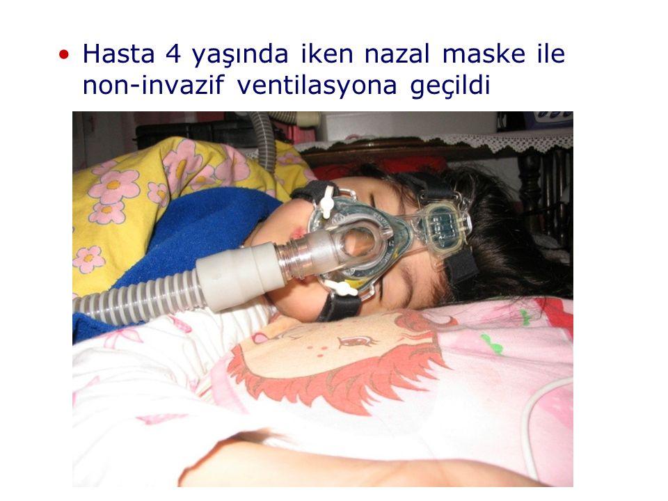Hasta 4 yaşında iken nazal maske ile non-invazif ventilasyona geçildi