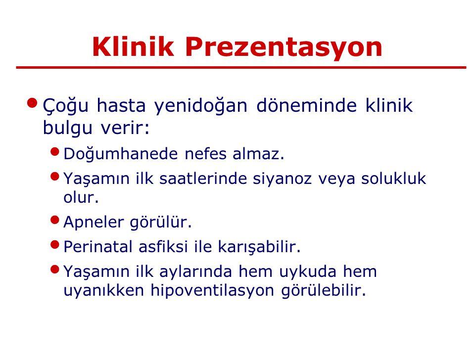 Klinik Prezentasyon Çoğu hasta yenidoğan döneminde klinik bulgu verir: