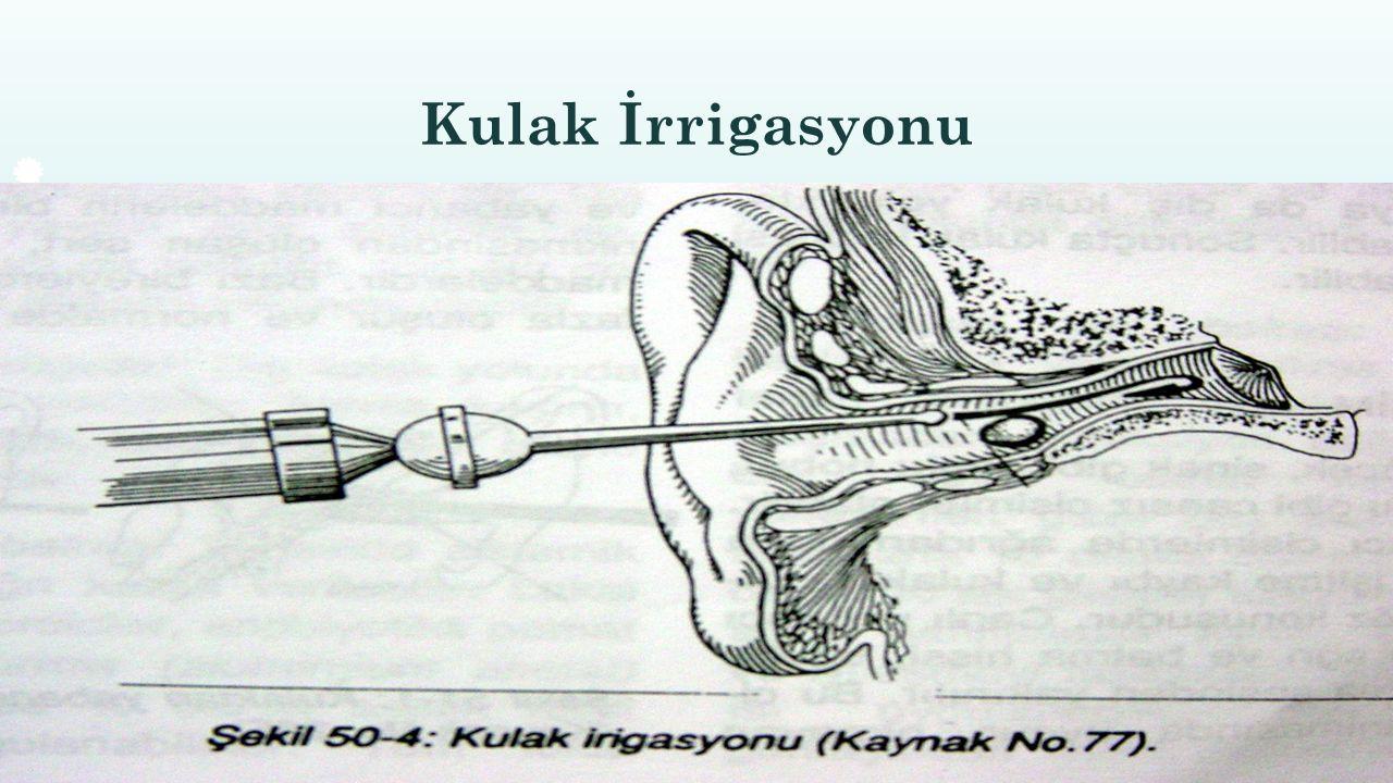 Kulak İrrigasyonu