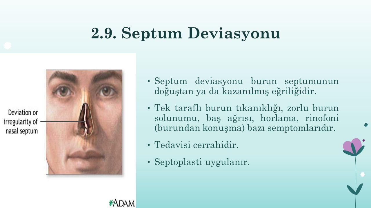 2.9. Septum Deviasyonu Septum deviasyonu burun septumunun doğuştan ya da kazanılmış eğriliğidir.