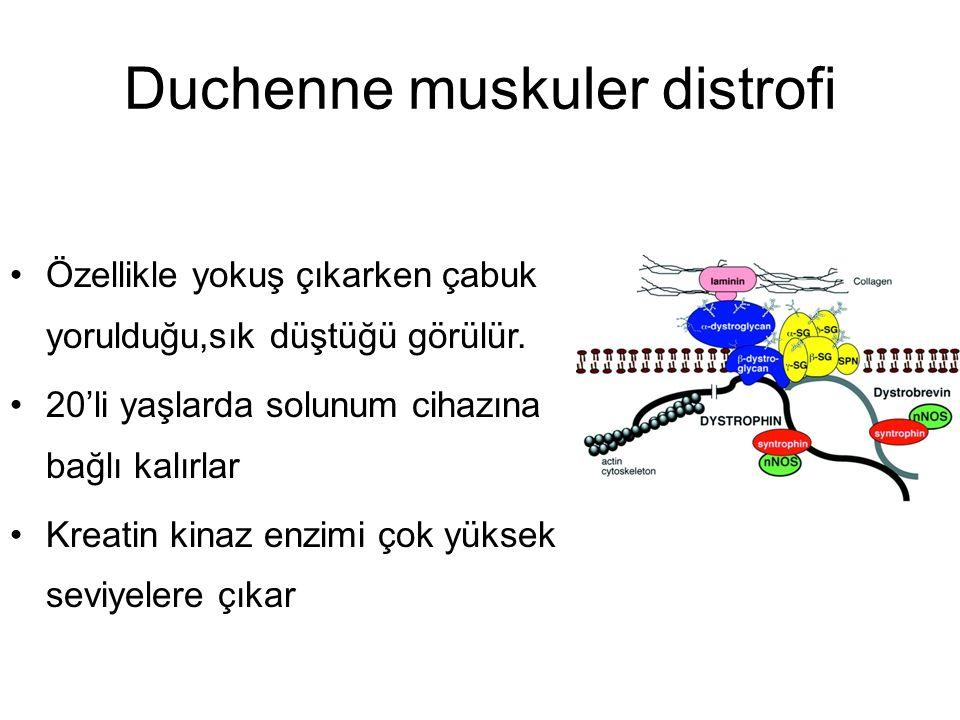 Duchenne muskuler distrofi