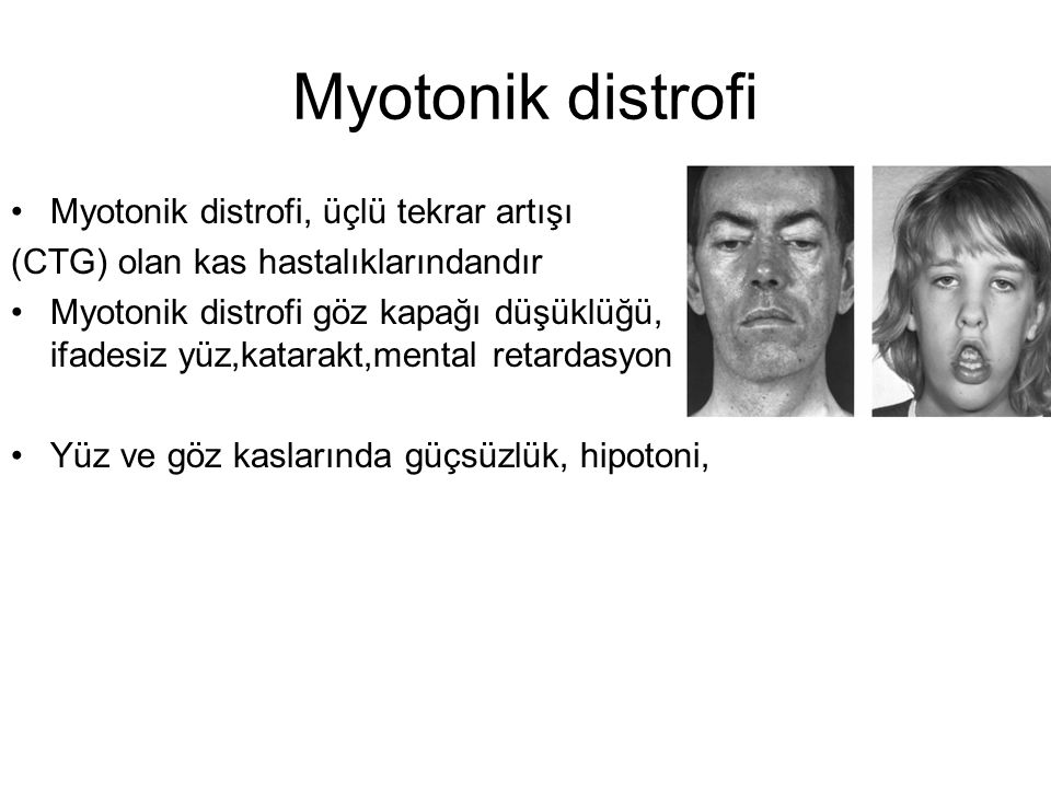 Myotonik distrofi Myotonik distrofi, üçlü tekrar artışı