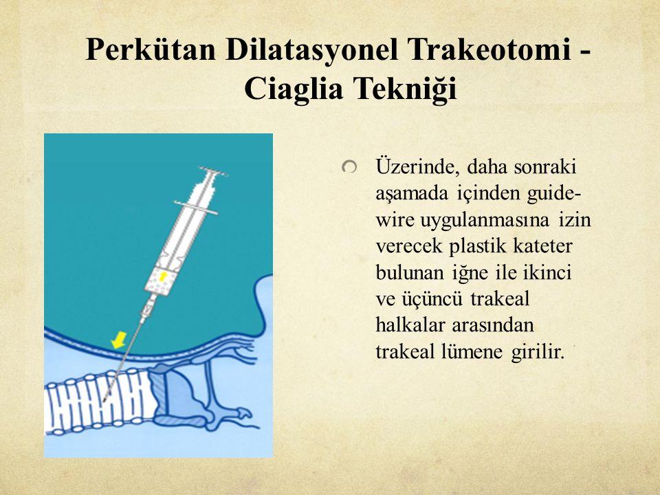Perkütan Dilatasyonel Trakeotomi - Ciaglia Tekniği