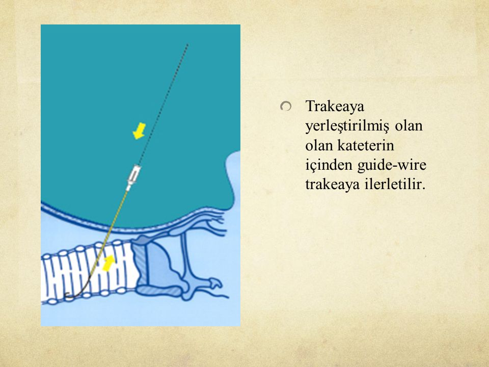 Trakeaya yerleştirilmiş olan olan kateterin içinden guide-wire trakeaya ilerletilir.