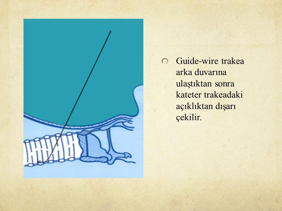 Guide-wire trakea arka duvarına ulaştıktan sonra kateter trakeadaki açıklıktan dışarı çekilir.