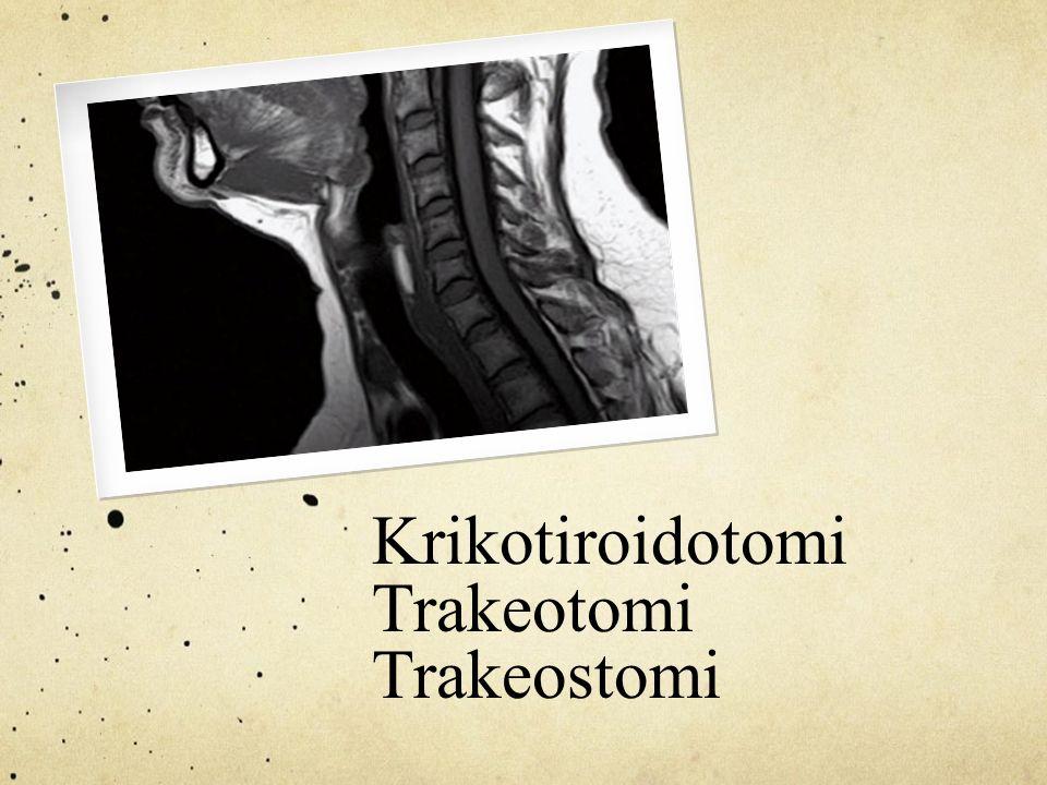 Krikotiroidotomi Trakeotomi Trakeostomi