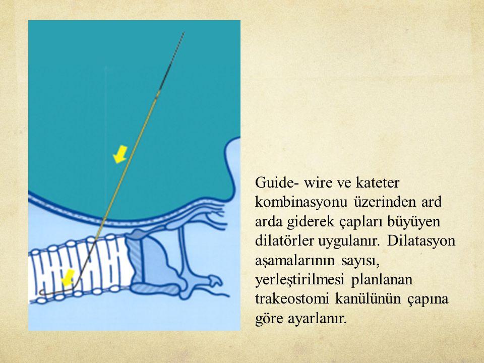 Guide- wire ve kateter kombinasyonu üzerinden ard arda giderek çapları büyüyen dilatörler uygulanır.