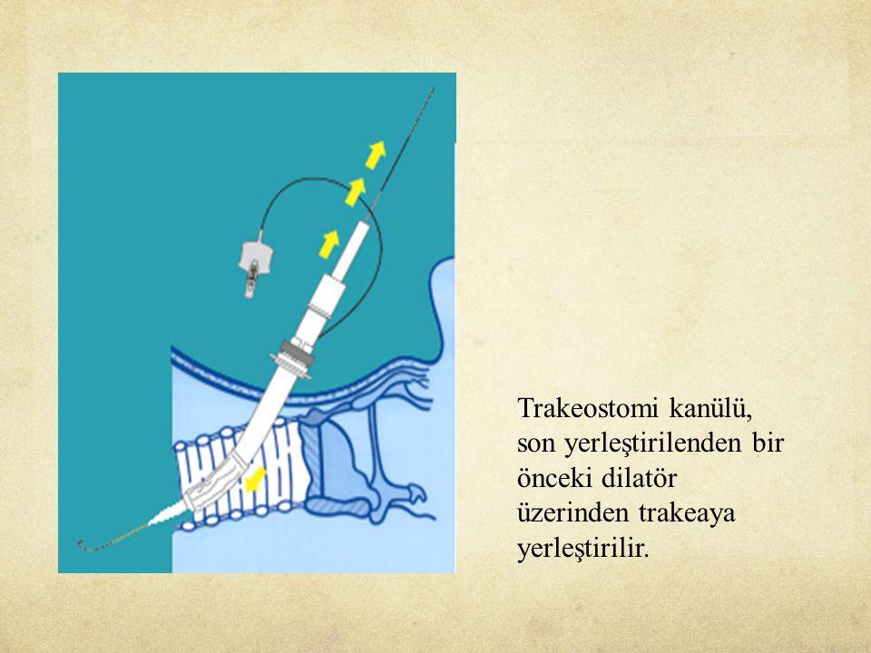 Trakeostomi kanülü, son yerleştirilenden bir önceki dilatör üzerinden trakeaya yerleştirilir.