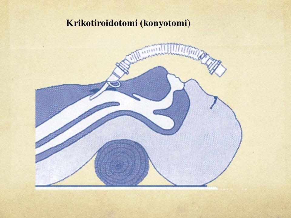 Krikotiroidotomi (konyotomi)