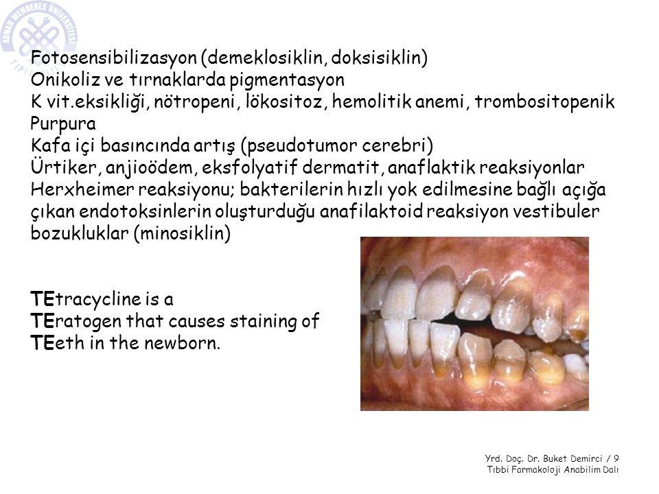Fotosensibilizasyon (demeklosiklin, doksisiklin)