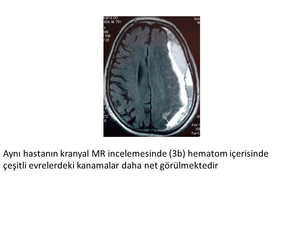 Aynı hastanın kranyal MR incelemesinde (3b) hematom içerisinde çeşitli evrelerdeki kanamalar daha net görülmektedir