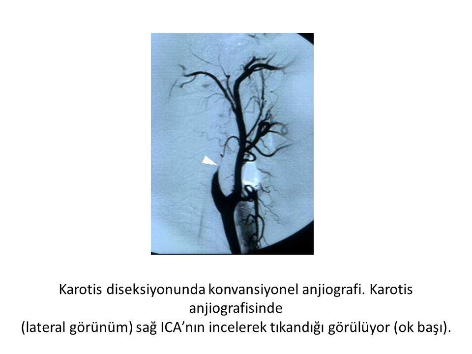 (lateral görünüm) sağ ICA'nın incelerek tıkandığı görülüyor (ok başı).