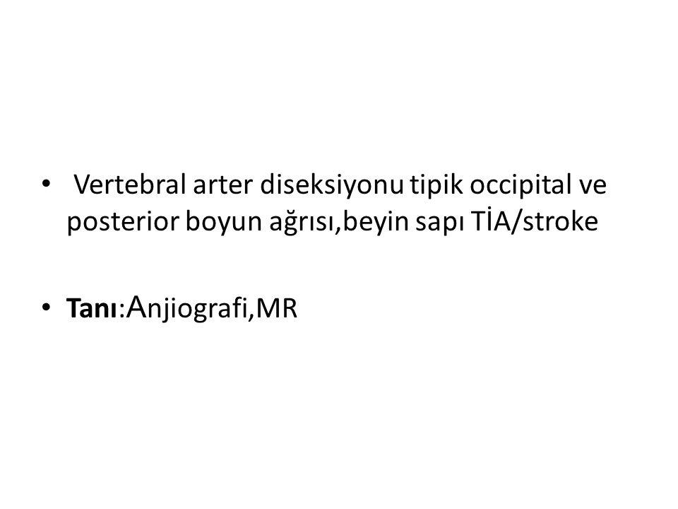 Vertebral arter diseksiyonu tipik occipital ve posterior boyun ağrısı,beyin sapı TİA/stroke