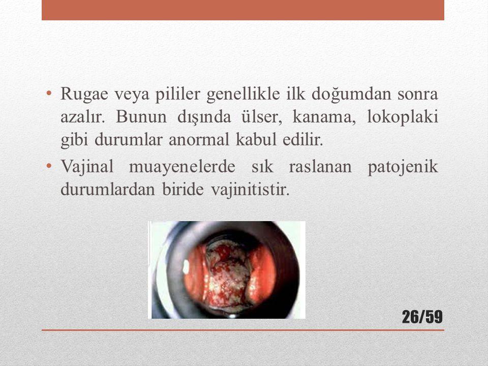 Rugae veya pililer genellikle ilk doğumdan sonra azalır