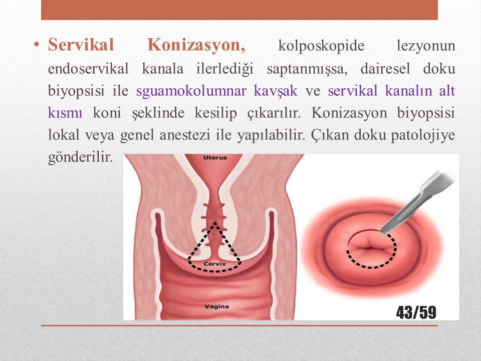 Servikal Konizasyon, kolposkopide lezyonun endoservikal kanala ilerlediği saptanmışsa, dairesel doku biyopsisi ile sguamokolumnar kavşak ve servikal kanalın alt kısmı koni şeklinde kesilip çıkarılır.