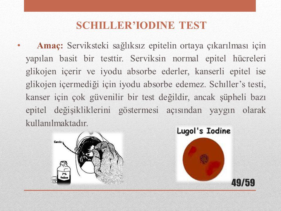 SCHILLER'IODINE TEST
